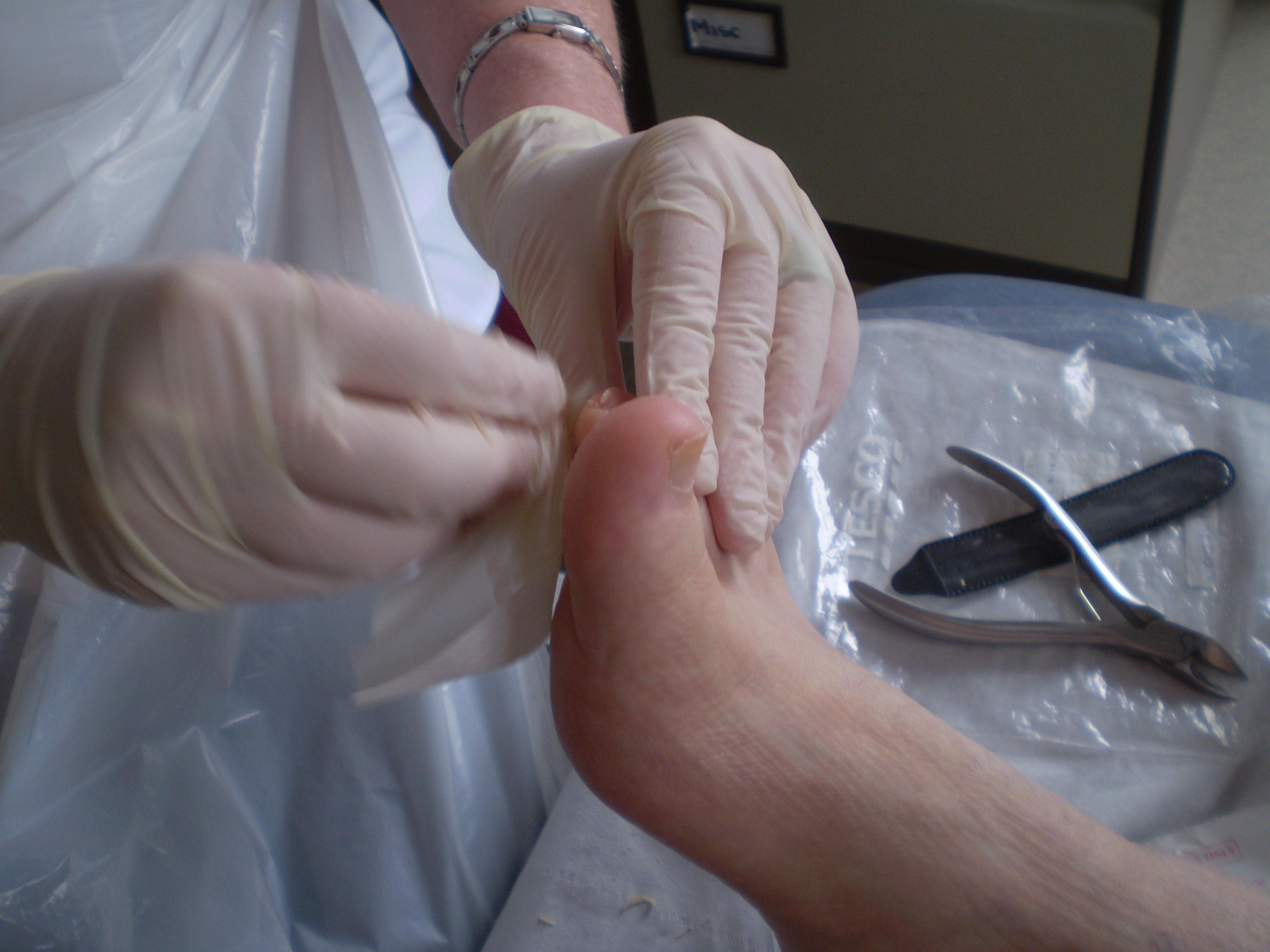 Unghie incarnata - interventia specialistului podolog la un picior cu unghie incarnata