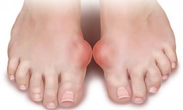 Guta - cauze şi prevenţie