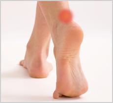 Tendinita ahileană – cauze, tratament şi prevenţie