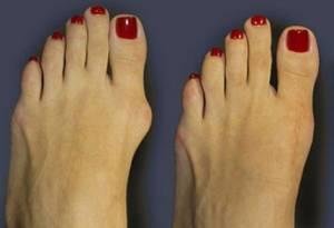 solutie-impotriva-monturilor-degete-picioare-300x205