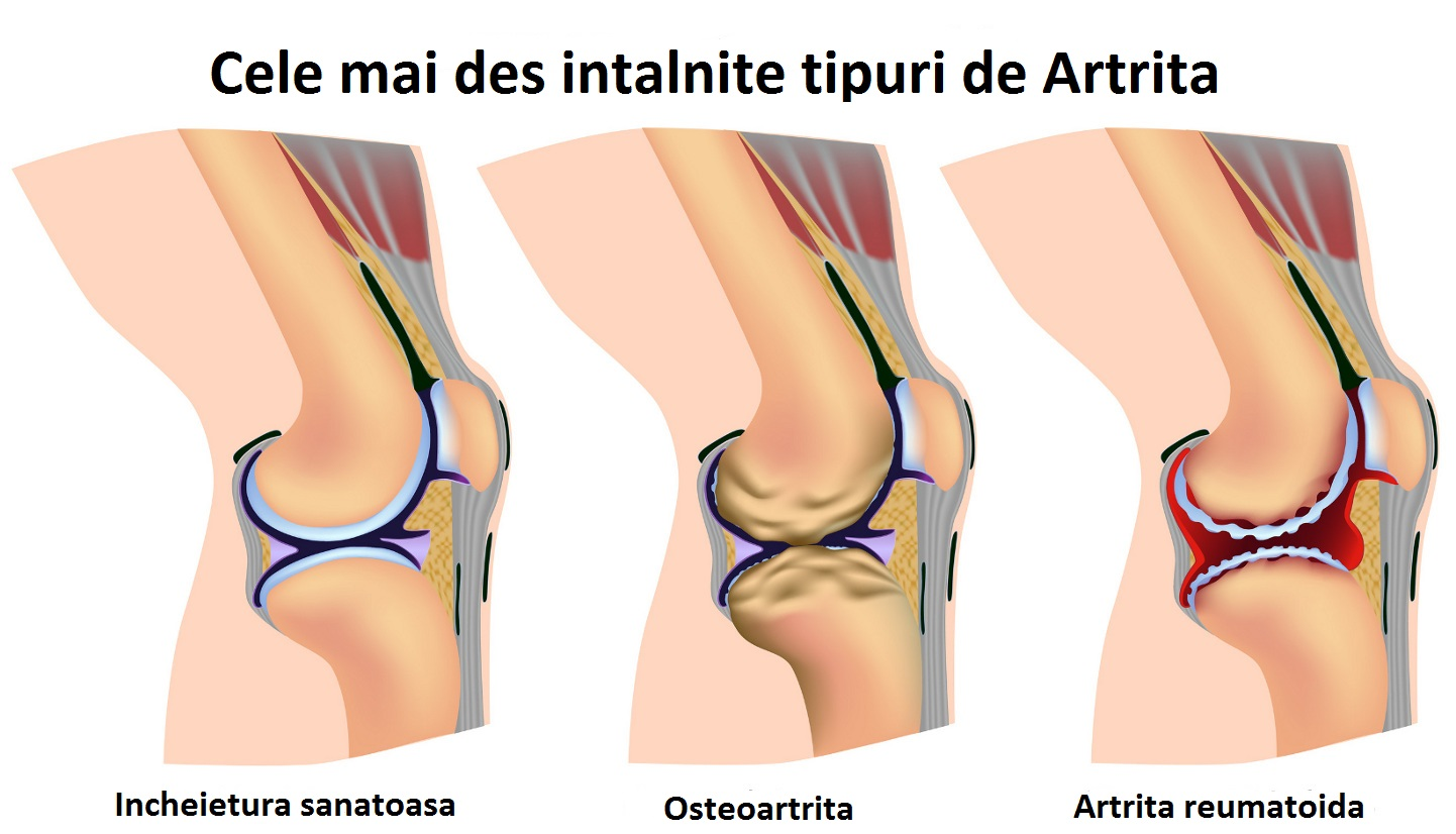 arthritis-commontypes