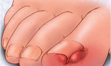 Remedii naturiste pentru unghii incarnate
