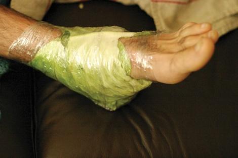 de ce durerile de picioare dimineața