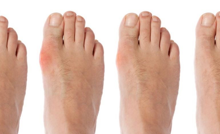 dureri de corp la picioare
