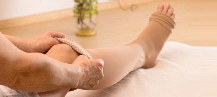 Afla cum retentia de apa impiedica mentinerea sanatatii picioarelor