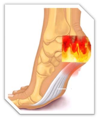 112312_0517_Feetburning12