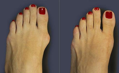 Pastile pentru tratamentul inflamației articulațiilor genunchiului a făcut rost de articulații decât de tratat