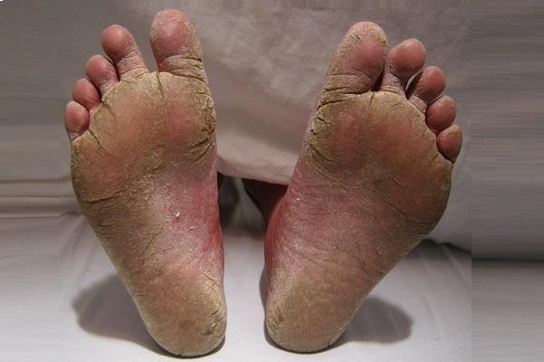 TRATAMENTE NATURISTE. Sănătatea picioarelor cu ajutorul produselor casnice de zi cu zi