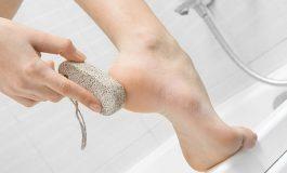 Top 4 măsuri de profilaxie pentru călcâie uscate și crăpate